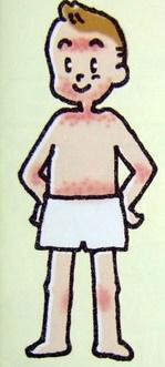 アトピー性皮膚炎の皮疹分布