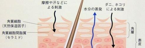 アトピーの乾燥肌の機序
