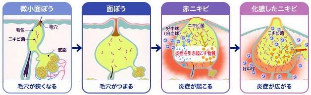 にきびの悪化、微小面皰から化膿へ