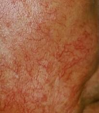 皮膚菲薄化と毛細血管拡張
