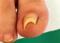 爪端が陥入した巻き爪