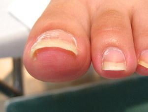 矯正後の巻き爪