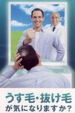 男性型脱毛症の治療ポスター