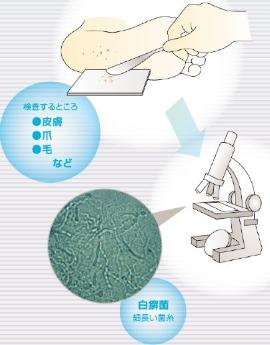 水虫の検査・診断