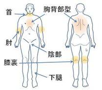 躯幹・四肢で湿疹が出やすいところ