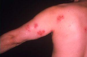 帯状疱疹の皮疹