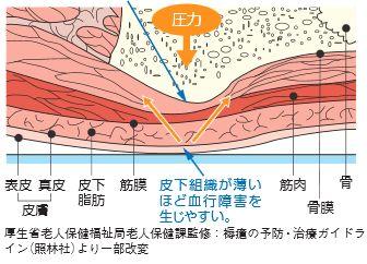 床ずれの出来る模式図