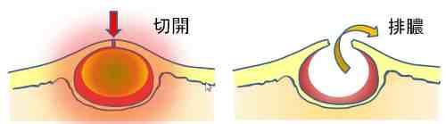 化膿した粉瘤を切開するイメージ