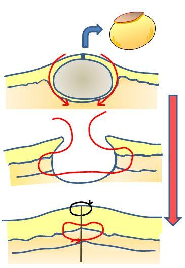 粉瘤の摘出および縫合