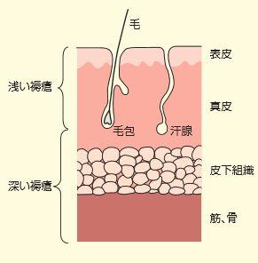 浅い褥瘡と深い褥瘡