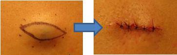 粉瘤手術の写真