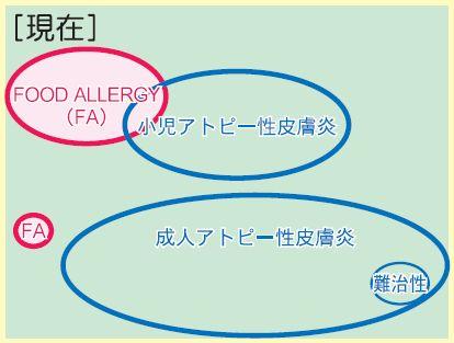 小児アトピー性皮膚炎と食物アレルギーの関係