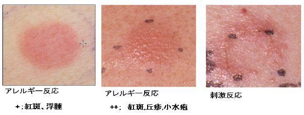 パットテストを行った皮膚の反応