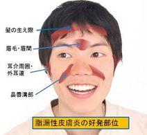 脂漏性皮膚炎の良くでる部位
