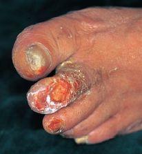 糖尿病壊疽による潰瘍