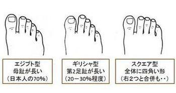 足の形のタイプ