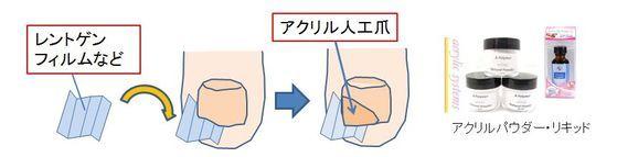 アクリル人口爪の施術手順