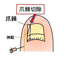 爪棘切除の図