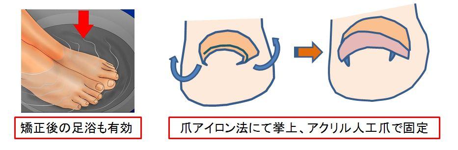 さまざまな簡易巻き爪矯正法