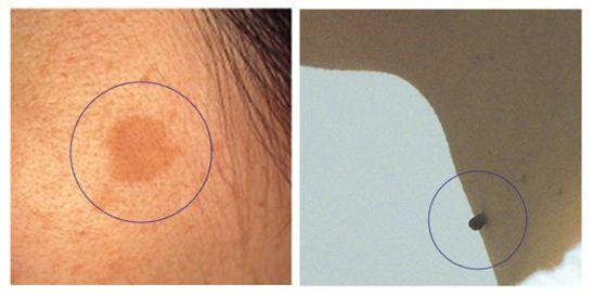 老人性のシミ・軟線維腫の画像
