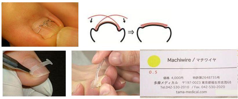 爪自体を矯正する方法