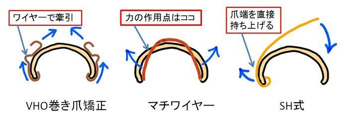 ワイヤータイプの矯正の種類