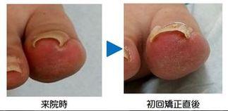 ホチキス型巻き爪