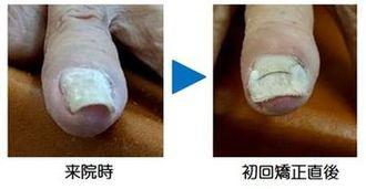 手爪の巻き爪