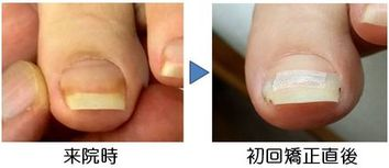 薄い爪の矯正