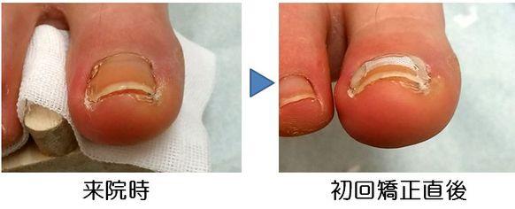 ドーム型の薄い爪に対する矯正