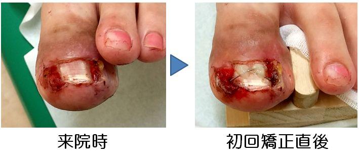化膿・肉芽腫形成した巻き爪