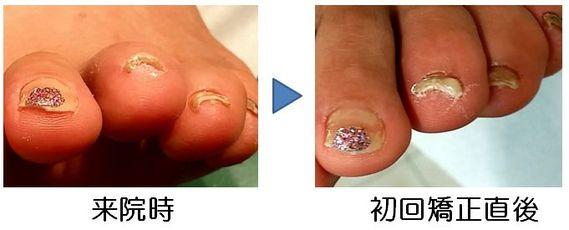 第3足趾ドーム型巻き爪