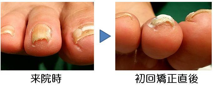 第2足趾ドーム型巻き爪