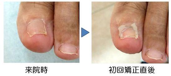 陥入爪手術後の巻きに対する矯正