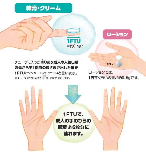 1FTUの説明図
