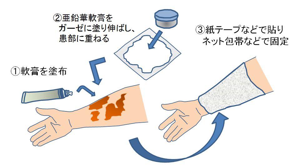 重層療法の模式図