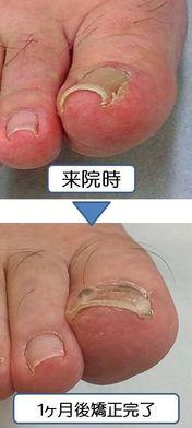巻き爪矯正後の経過