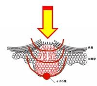 疣贅の芯へ向けて液体窒素を当てるイメージ