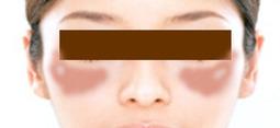 肝斑のイメージ