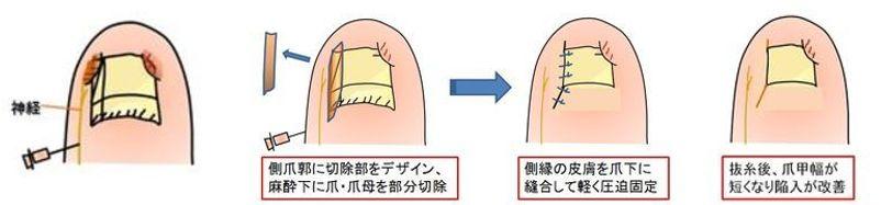陥入爪根治手術の図説
